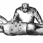 пациент с лампочками, Гурский Аркадий